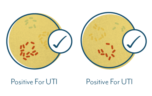 UTI test results positive at all thresholds