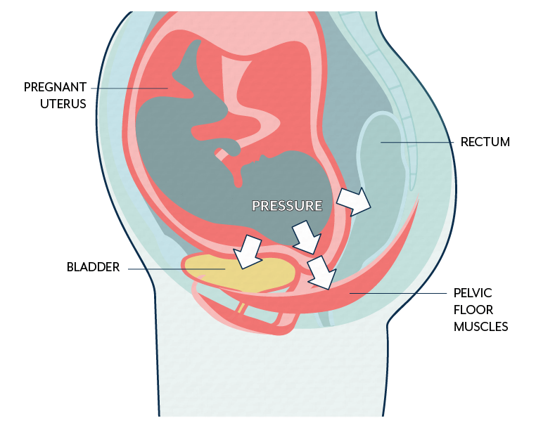 Pregnancy, pelvic floor muscles and urinary incontinence