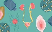 Chronic Urinary Tract Infection vs. Recurrent UTI Symptoms